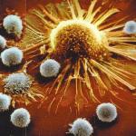 Distruggere i Tumori con gli Enzimi Proteolitici