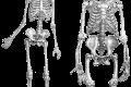 Una Mutazione al GDF5 predispone all'artrosi