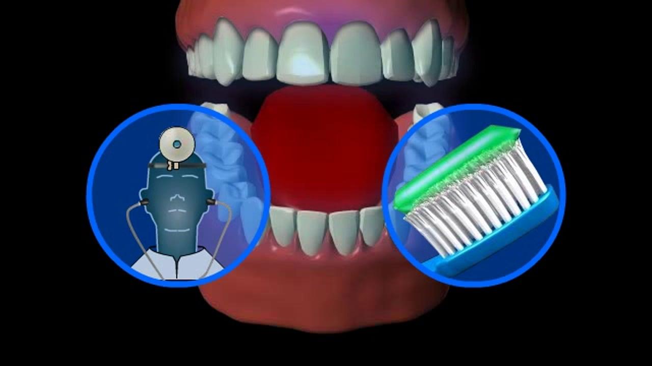 Perché lavarsi i denti può aiutare a prevenire l'artrite