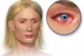 Incenso e Curcuma, contro l'Allergia