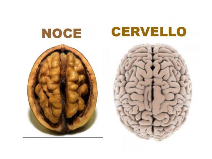 Paragone Noce - Cervello