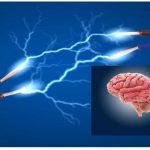 Il Cervello è un Organo Elettrico?