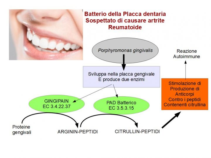 Porphyromonas gingivalis: Il batterio dell'artrite reumatoide